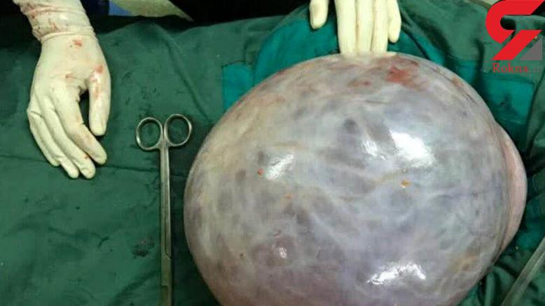 زن 52 ساله اردبیلی در 2 دقیقه 11 کیلو لاغر شد + عکس