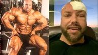 تومور مغزی قهرمان پرورش اندام جهان! + عکس و فیلم