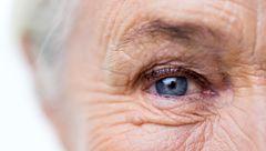 چروک های عمیق پوستی نشانه چه بیماری هایی است؟