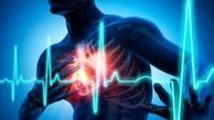 آمار ۴۶ درصدی مرگ قلبی در ایران/ اهمیت آنژیوپلاستی