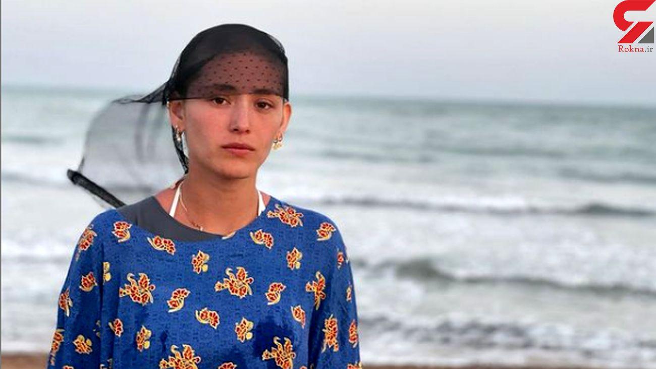 بازیگر افغانی سریال قورباغه کچل کرد