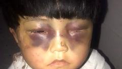 شکنجه وحشتناک دختر خردسال توسط پدرش + عکس 16+