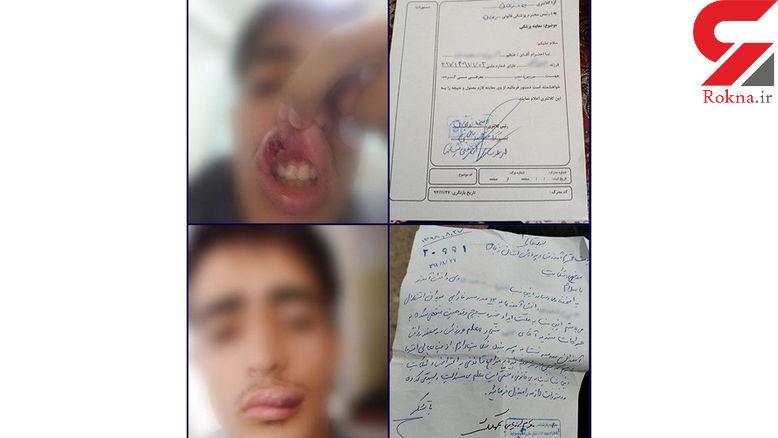 توضیحات ناقص مسئولان درباره بلای وحشتناکی که بر سر دانش آموز زنجانی آمد