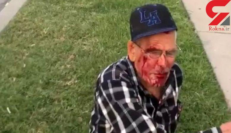 حمله نژادپرستانه با آجر به پیرمرد ۹۲ ساله در لس آنجلس + عکس