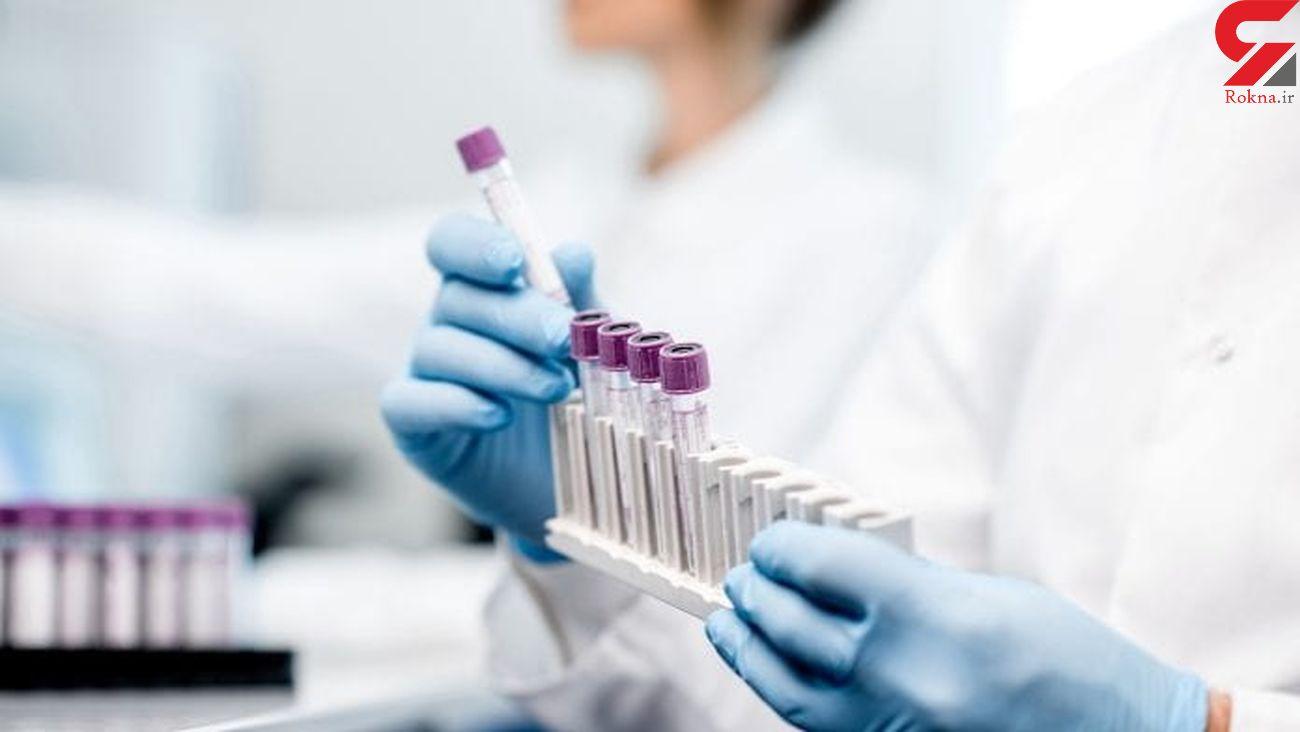 آکسفورد واکسن کرونا را تولید انبوه می کند + قیمت دارو