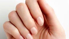 ناخن های رنگ پریده زنگ خطر چه بیماری هایی است؟