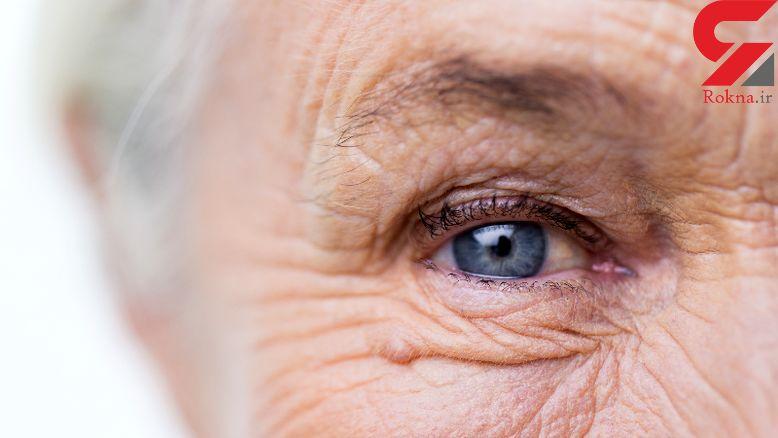 سلامت چشم با ساده ترین روش های بهداشتی