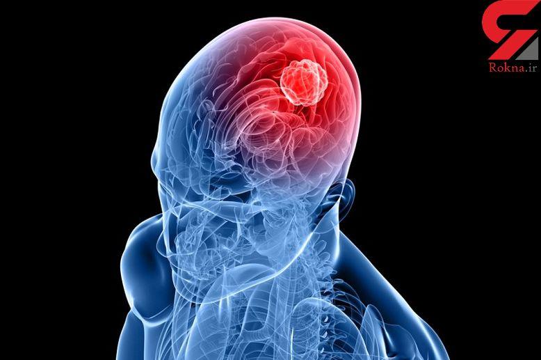 علائم و درمان تومورهای مغزی