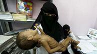 سازمان ملل: یمن با بزرگترین قحطی جهان روبروست