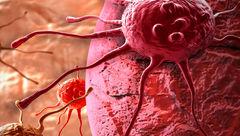 کشنده ترین بیماری که در کمین سلامت مردان است