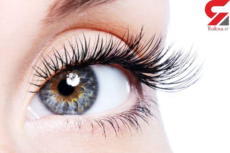 عوارض استفاده بیش از حد از قطره های چشمی