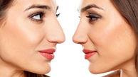 چرا زنان ایرانی به جراحی زیبایی گرایش شدید دارند؟