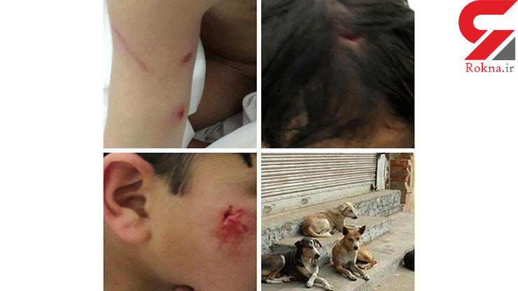 کودک ۷ ساله تفتی در میان چنگال های سگ ولگرد+ عکس