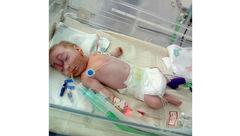 چهره عجیب نوزاد هنگام تولد پزشکان را حیرت زده کرد