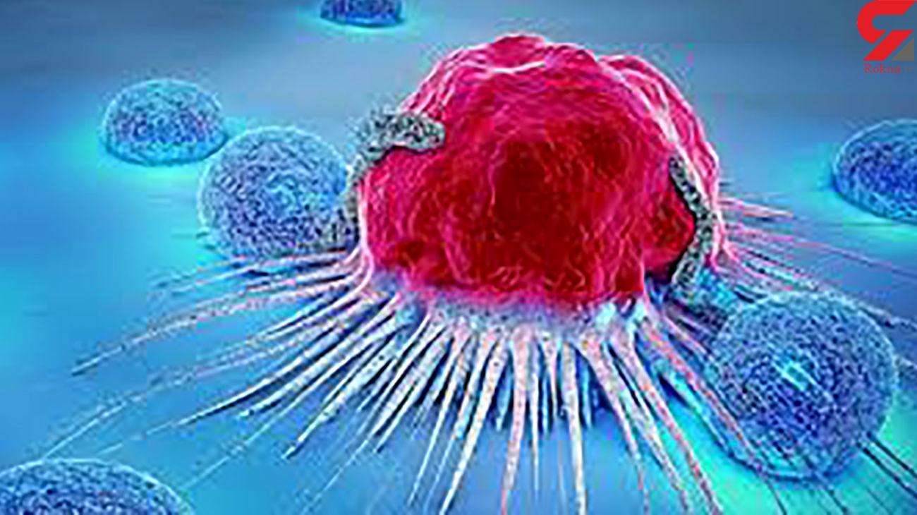 شایع ترین سرطان ها بین خانم ها و آقایان