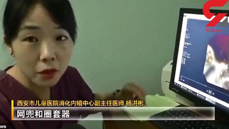 حیرت پزشکان هنگام مشاهده ته گلوی دختر 8 ساله+ عکس