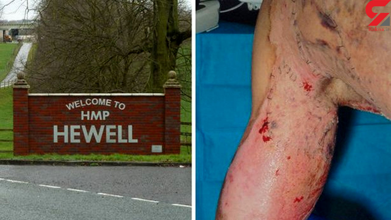 Prison officer hospitalised in 'boiling water and sugar' napalm attack