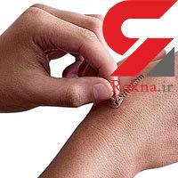 درمان های طبیعی برای از بین بردن جای زخم