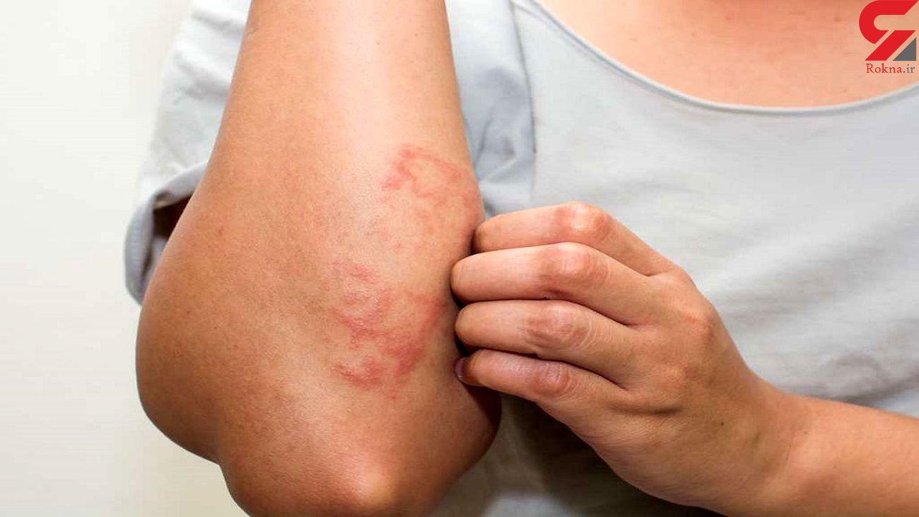 احتمال بروز ضایعه پوستی به عنوان تنها علامت ابتلا به کرونا