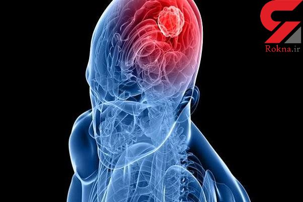 عامل اصلی ابتلا به تومور مغزی کشف شد