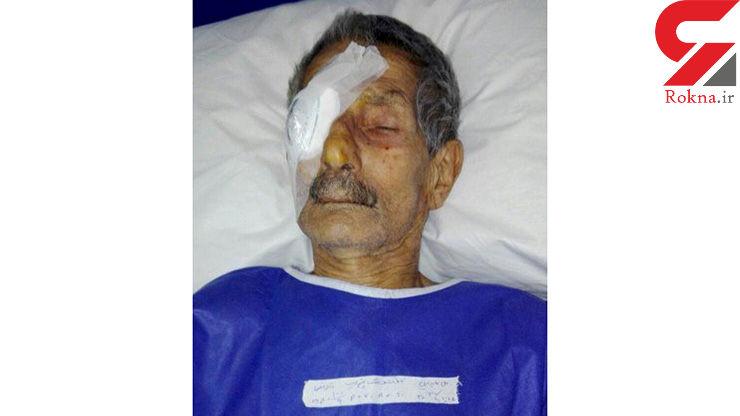 عمل جراحی چشم راست یک بیمار به جای چشم چپ او در نوشهر اشتباه بود؟+عکس