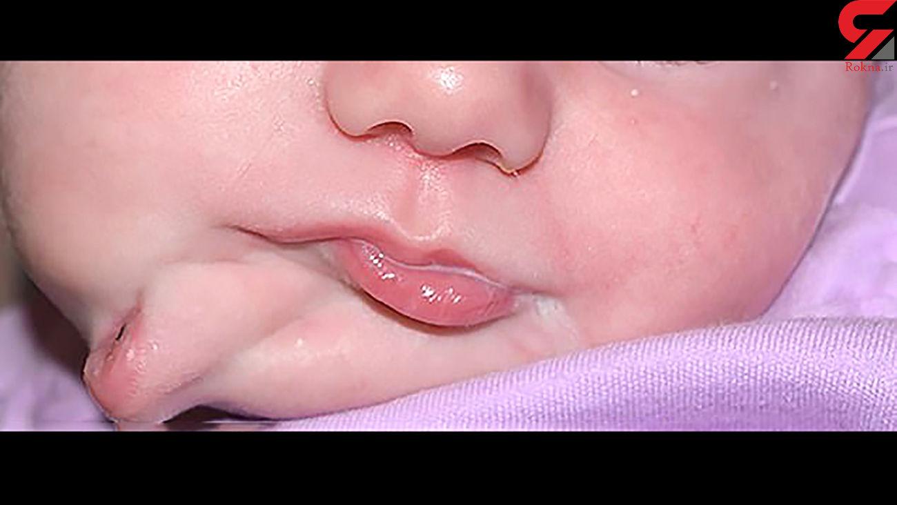 تولد نوزاد عجیب الخلقه با دو دهان + عکس