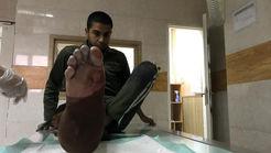 اولین مصدوم پلیس تهران در چهارشنبه سوری / با نارنجک به او حمله کردند + فیلم و عکس
