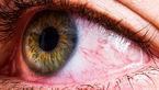 کشف کرونا در چشم زن 64 ساله دو ماه بعد از بهبودی