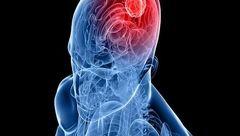 ارتباط سندروم ژنتیکی و ابتلای به تومور مغزی در کودکان