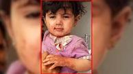 جنجال عکس یک دختر بچه  یتیم در جهان! / همه خانواده مردند و او در یمن زنده ماند +عکس