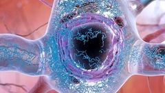 تشخیص آلزایمر با یک آزمایش ساده