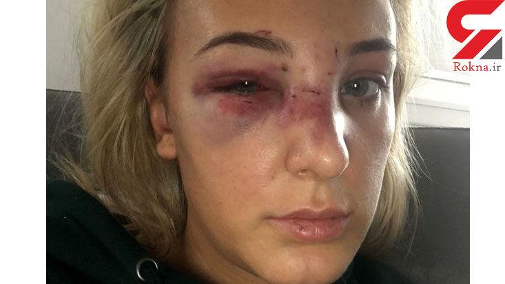 یک زن بدجوری کتک خورد و قهرمان شنا شد + عکس های صورت خونین
