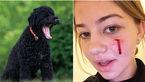 حمله خونین سگ اوباما در کاخ سفیدبه دختر جوان+عکس
