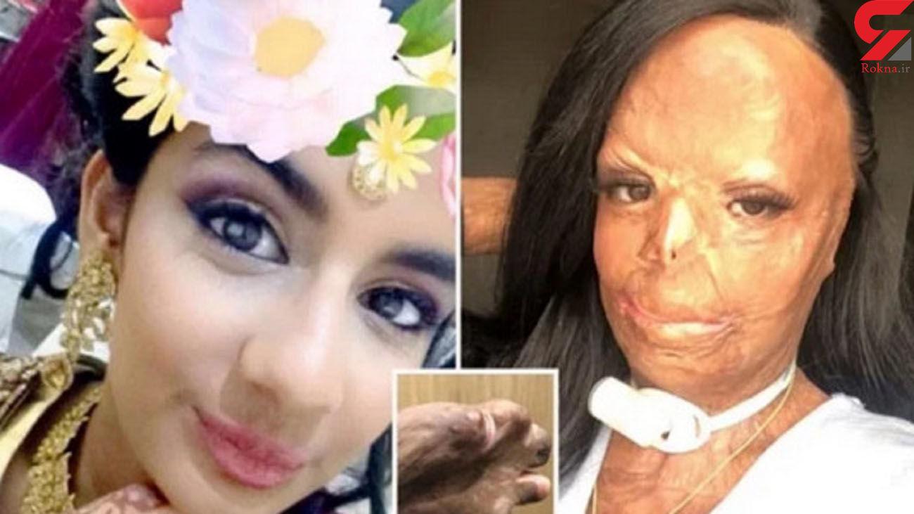 شامپوی ضد شپش دختر جوان را در حمام به آتش کشید+ عکس