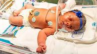 تولد نوزاد عجیب همه را شگفت زده کرد+ عکس