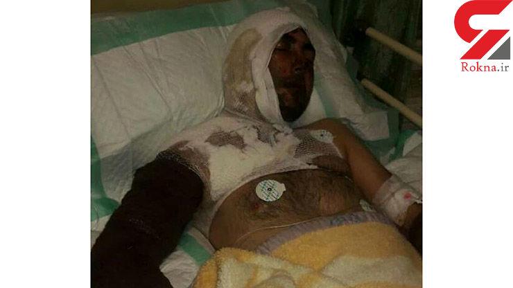پدر سنگدل عروس و پسرش را قربانی اسیدپاشی کرد / در خلخال رخ داد+ عکس فجیع