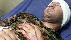 فعال محیط زیستی دشتستان زخمی شد