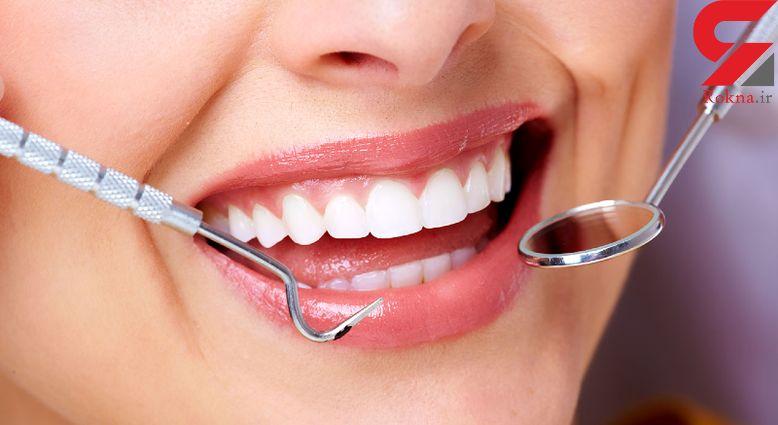 آب معدنی عامل زردی دندان ها