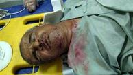 سقوط مرد نابینای چابهاری از پل عابر پیاده بدون حفاظ+ عکس