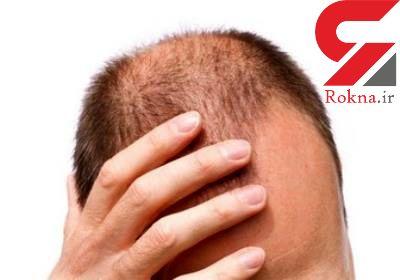 ریزش مو با این روش ها درمان کنید