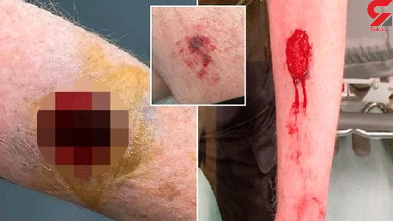 Special constable, 69, bitten on arm as three others injured during arrest