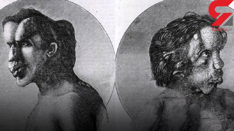 کشف بقایای زشت ترین مرد دنیا در یک قبر بدون اسم در لندن +عکس