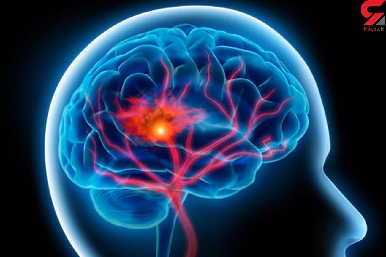اصلی ترین راه های پیشگیری از سکته مغزی کدامند؟