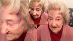 سرقت وحشیانه حلقه ازدواج پیرزن 87 ساله + عکس